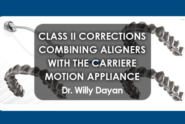 Class II Corrections By Combining Aligners with the Carriere Motion Appliance
