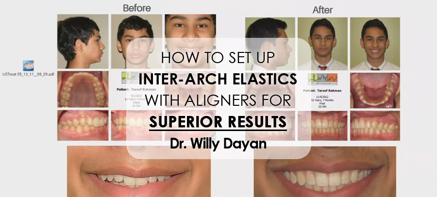 How to Set Up Inter-Arch Elastics with Aligners for Superior Results