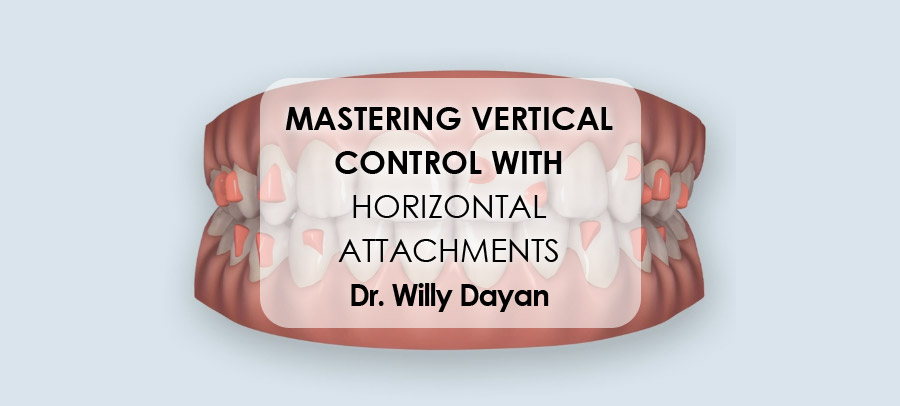 Mastering Vertical Control With Horizontal Attachments