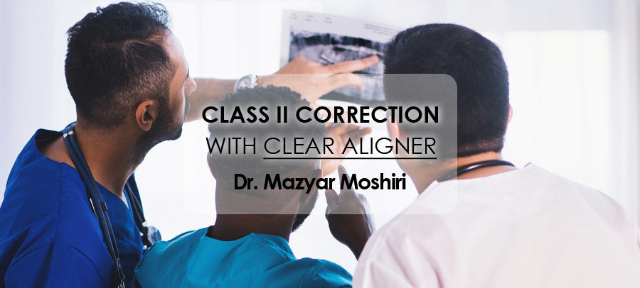 Webinar Class II Correction with Clear Aligner