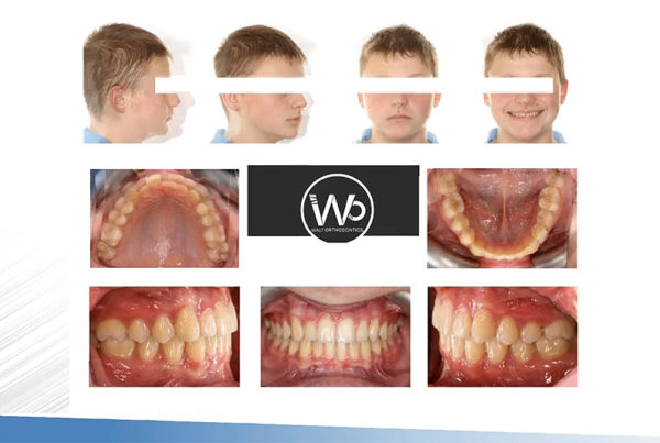 Combining Aligners with the Carrier Motion Appliance